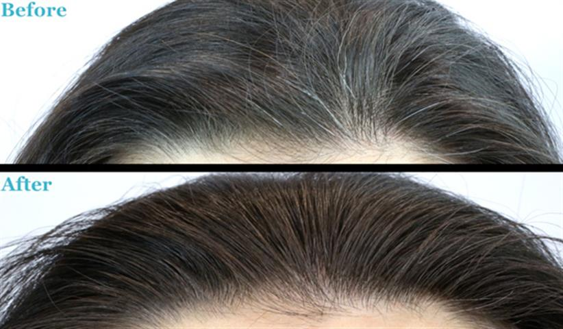 Remedies for Get Rid of Grey Hair by Using Foods1